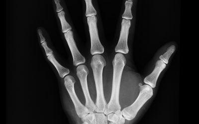 CAH treatment may be linked to lower bone mineral density